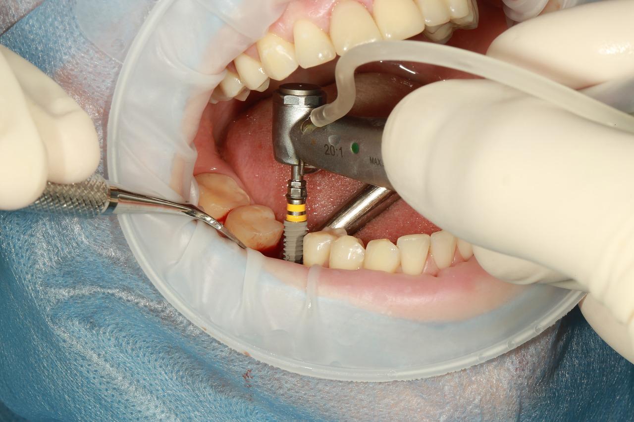 Implant dentaire : quelle est son utilité ?